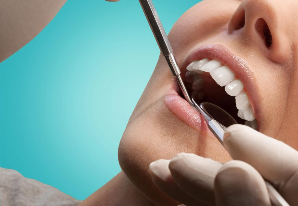 who offers gum surgery coral springs?