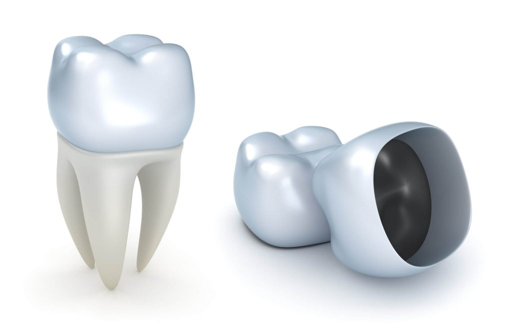 Where can I get a Dental Crown Coral Springs