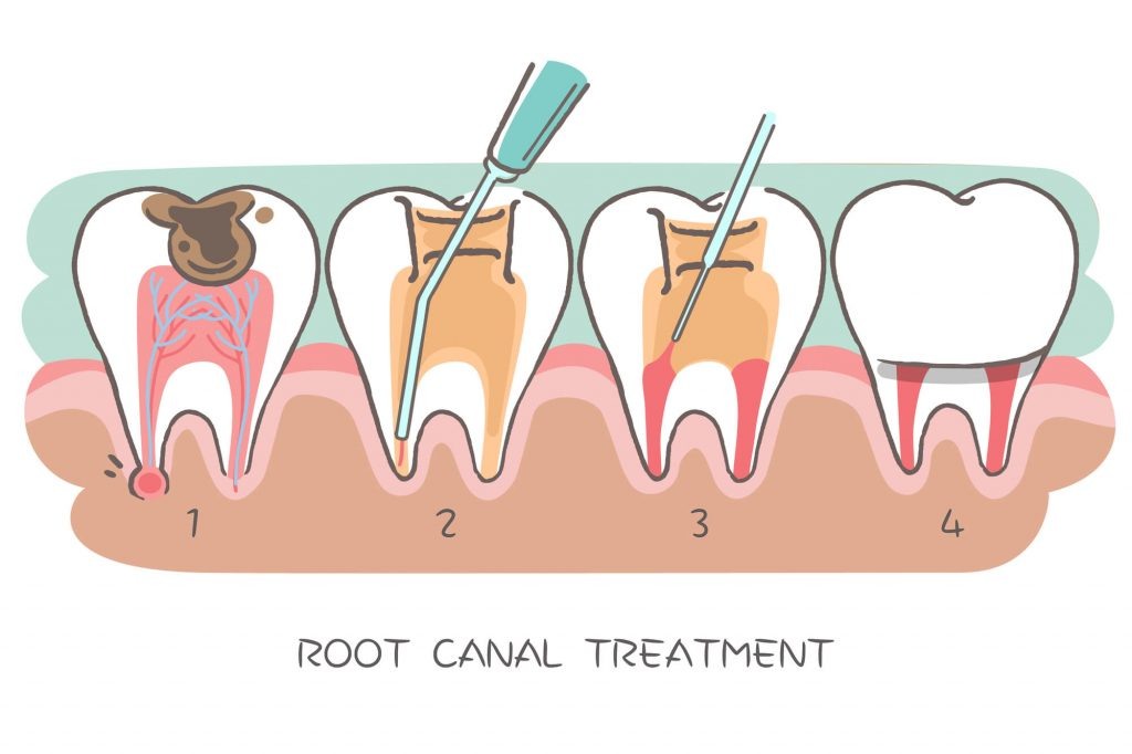 Where can I get a Root Canal Coral Springs?
